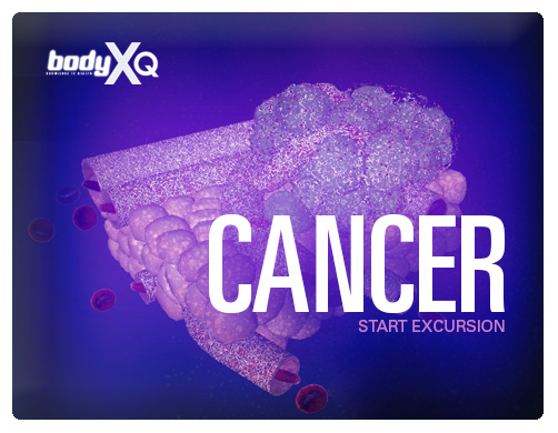 Body Xq Cancer
