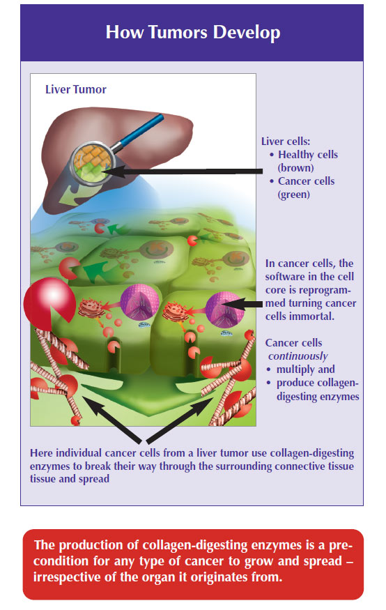 how tumor develops dr rath