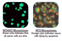 cancer cells  micronutrients
