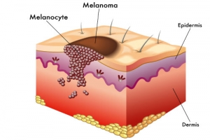 dr rath phytonutrients skin cancer melanoma vitamins
