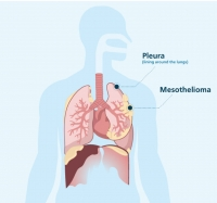 Micronutrients Can Benefit In Combatting Mesothelioma