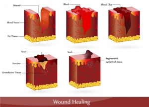 The Benefits Of Micronutrients In Wound Healing